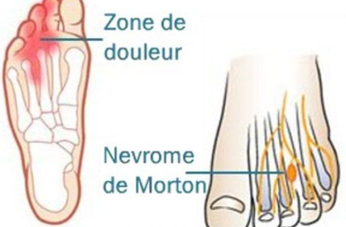 Nevrome Morton
